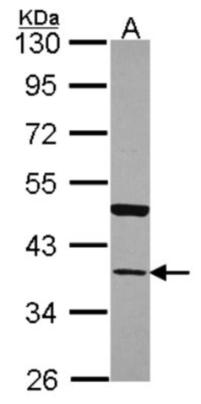 anti-Annexin A13, Polyclonal, Novus Biologicals 0.1mg; Unlabeled:Life Sciences