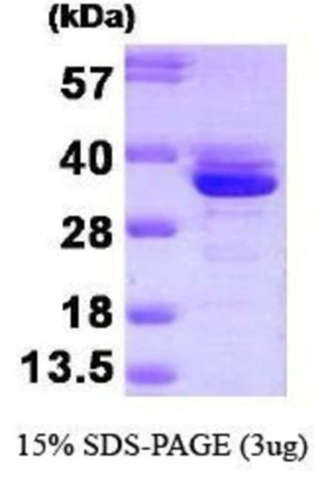 Novus BiologicalsHuman Annexin A3 Recombinant Protein 0.1mg:Biochemical