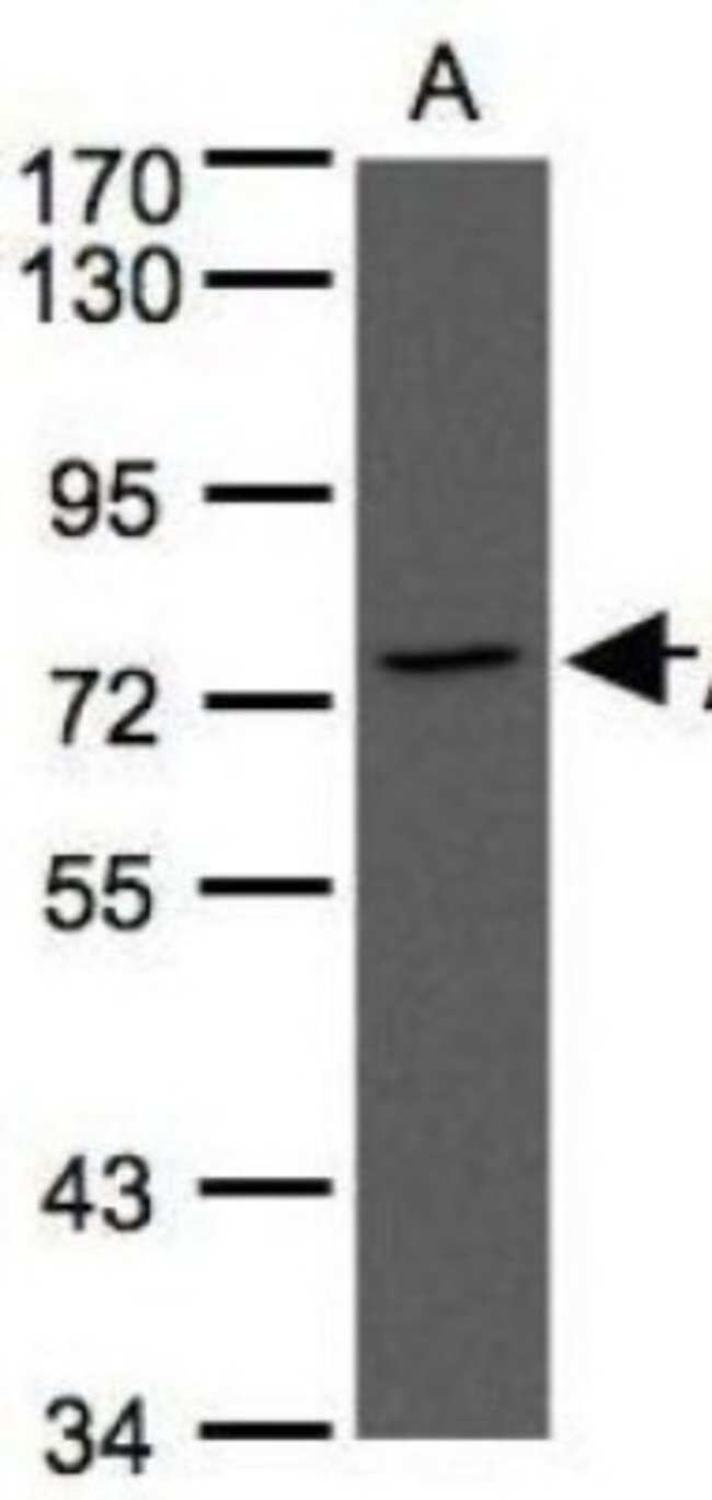 anti-Annexin A6, Polyclonal, Novus Biologicals 0.1mL; Unlabeled:Antibodies
