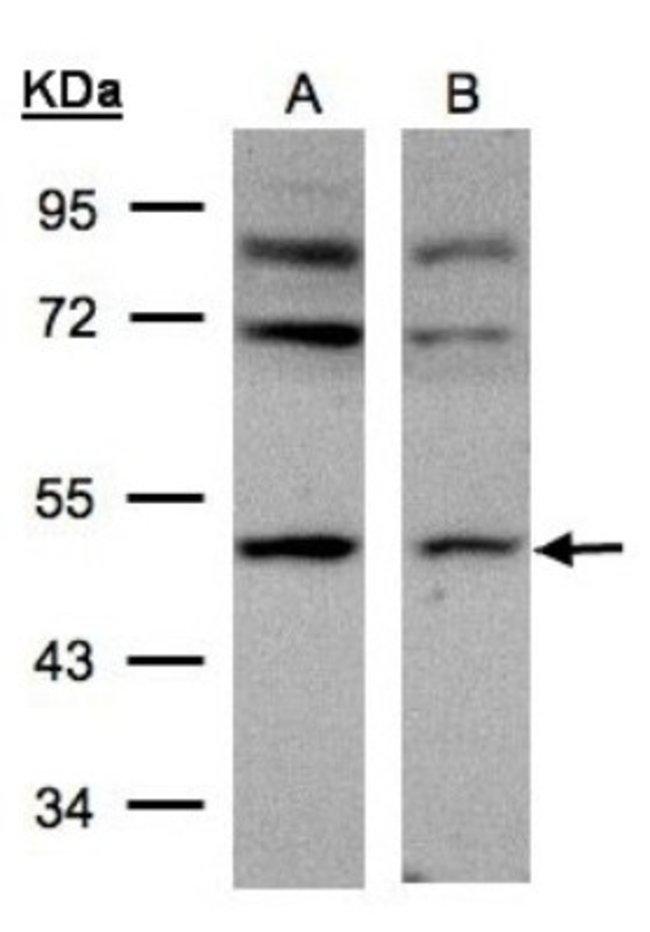 anti-AP2M1, Polyclonal, Novus Biologicals 0.1mL; Unlabeled:Life Sciences