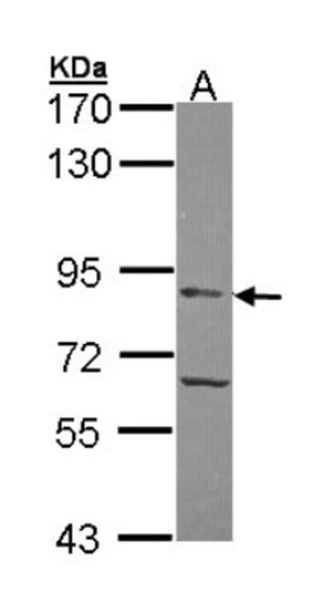 anti-APEH, Polyclonal, Novus Biologicals 0.1mL; Unlabeled:Life Sciences