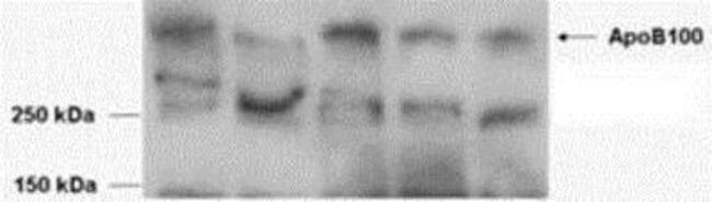 anti-Apolipoprotein B/ApoB, Polyclonal, Novus Biologicals 0.1mg; Unlabeled:Life