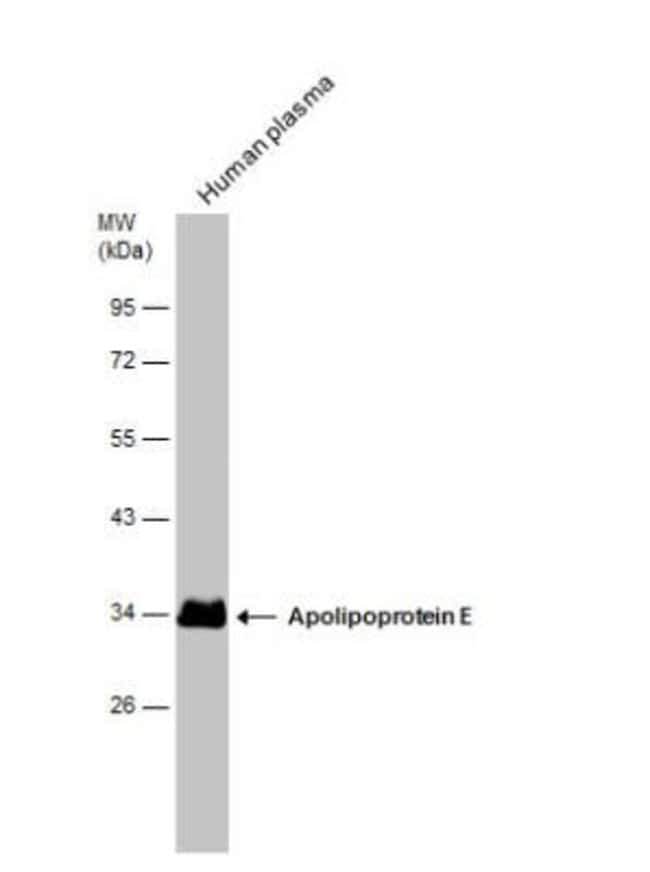 anti-Apolipoprotein E/ApoE, Polyclonal, Novus Biologicals 0.1 mg; Unconjugated:Life