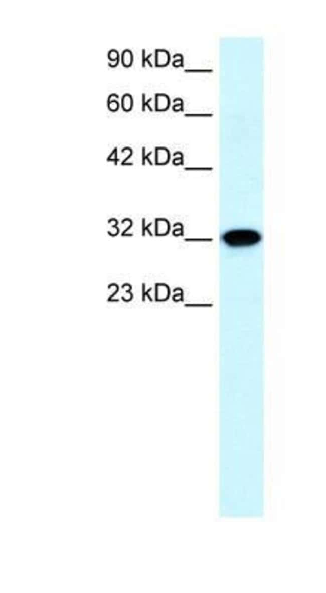 Aquaporin-7 Rabbit anti-Human, Polyclonal, Novus Biologicals 20µL;