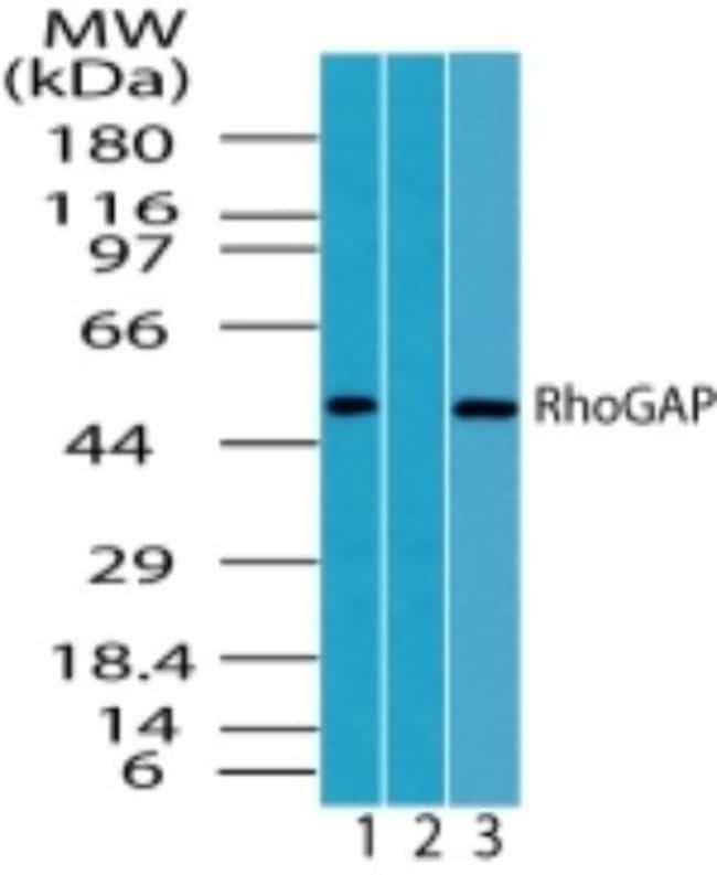anti-ARHGAP1, Polyclonal, Novus Biologicals:Antibodies:Primary Antibodies