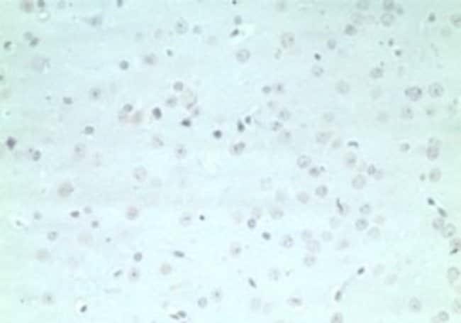 anti-ARHGAP20, Polyclonal, Novus Biologicals:Antibodies:Primary Antibodies