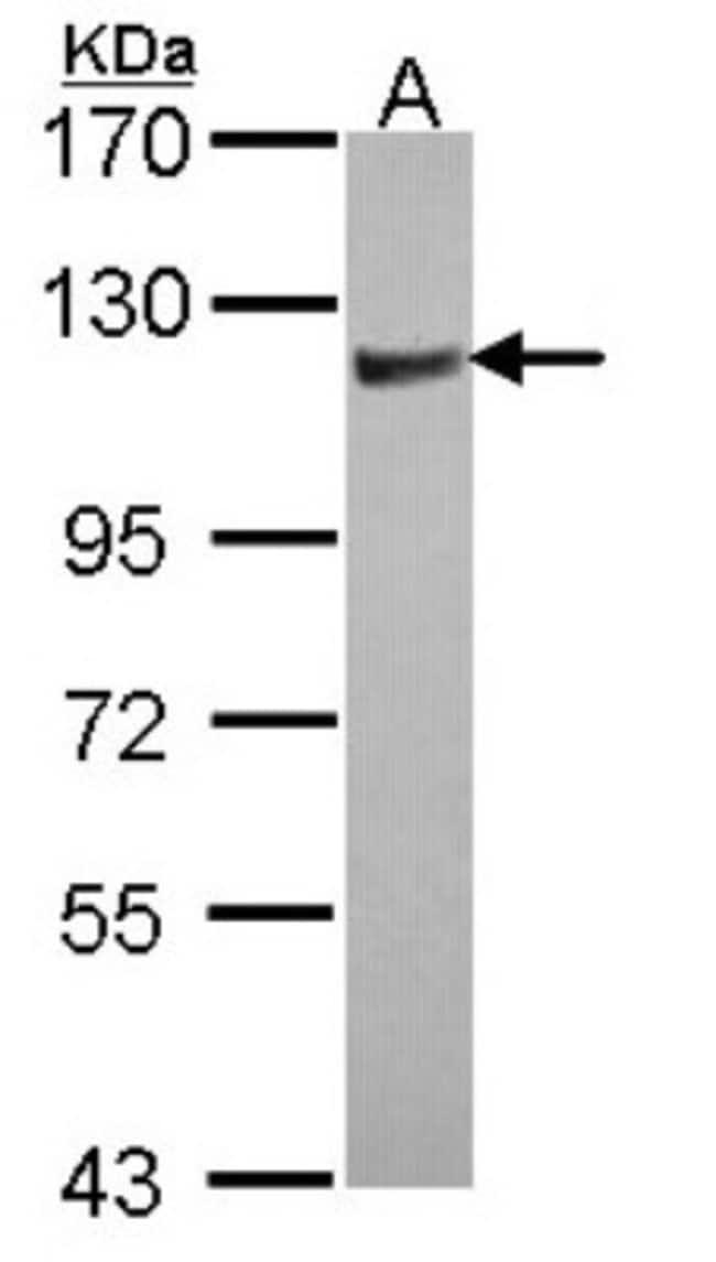 anti-ARHGAP4, Polyclonal, Novus Biologicals 0.1mL; Unlabeled:Antibodies