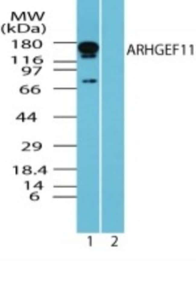 anti-ARHGEF11, Polyclonal, Novus Biologicals:Antibodies:Primary Antibodies