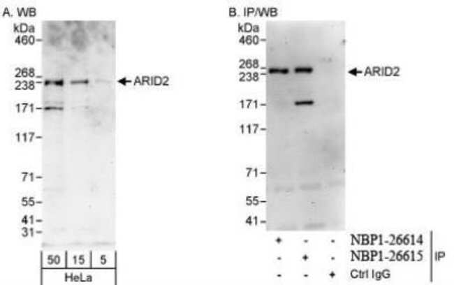anti-ARID2, Polyclonal, Novus Biologicals 0.1mg; Unlabeled:Antibodies