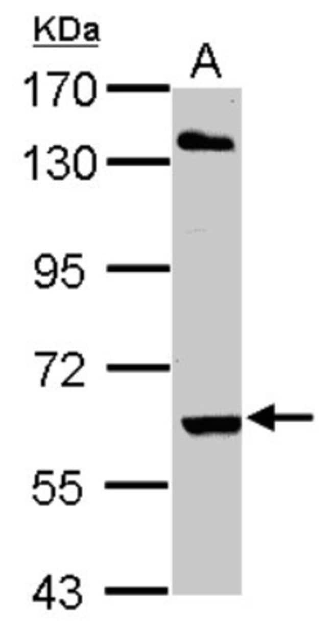 anti-ARIH2, Polyclonal, Novus Biologicals 0.1mg; Unlabeled:Antibodies