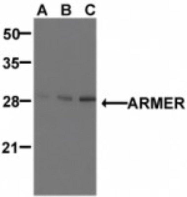 anti-ARMER, Polyclonal, Novus Biologicals 0.1mg; Unlabeled:Life Sciences