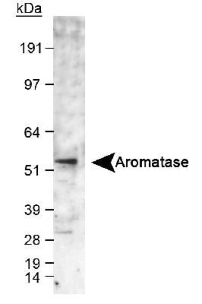 anti-Aromatase, Polyclonal, Novus Biologicals:Antibodies:Primary Antibodies