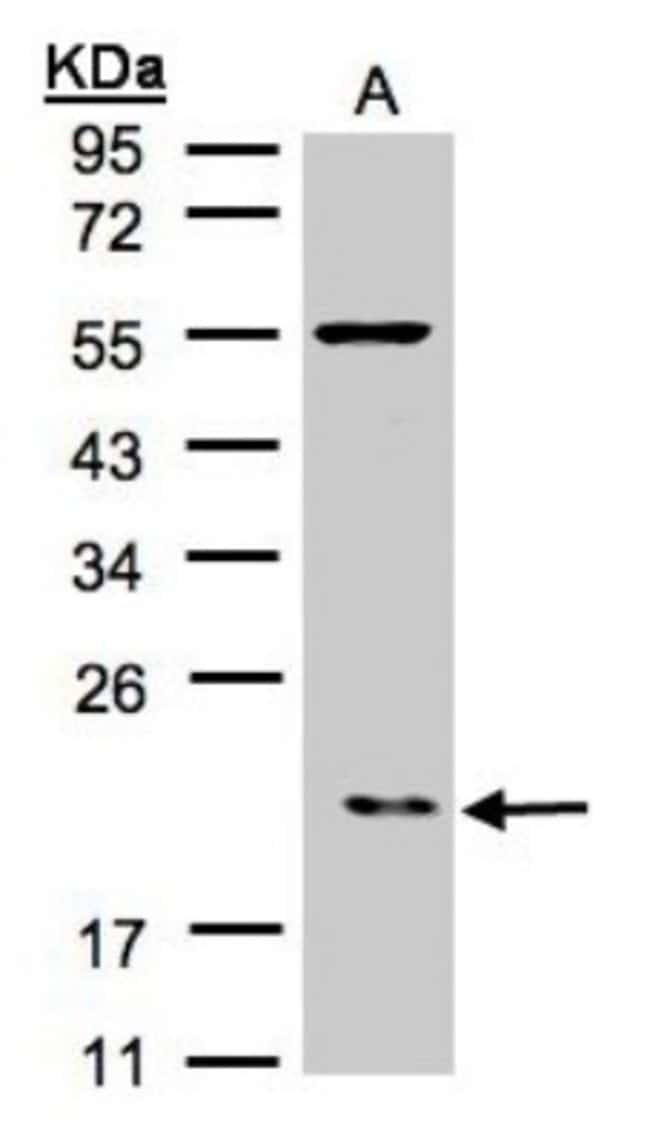 anti-ARPC3, Polyclonal, Novus Biologicals 0.1mL; Unlabeled:Life Sciences