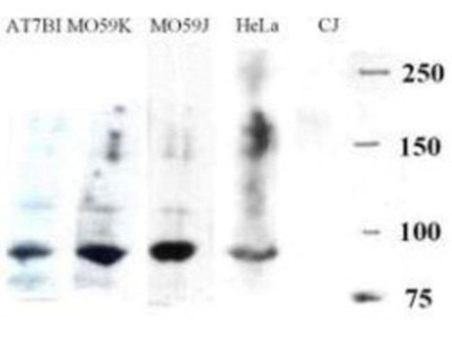 anti-Artemis, Polyclonal, Novus Biologicals 0.1mg; Unlabeled:Life Sciences
