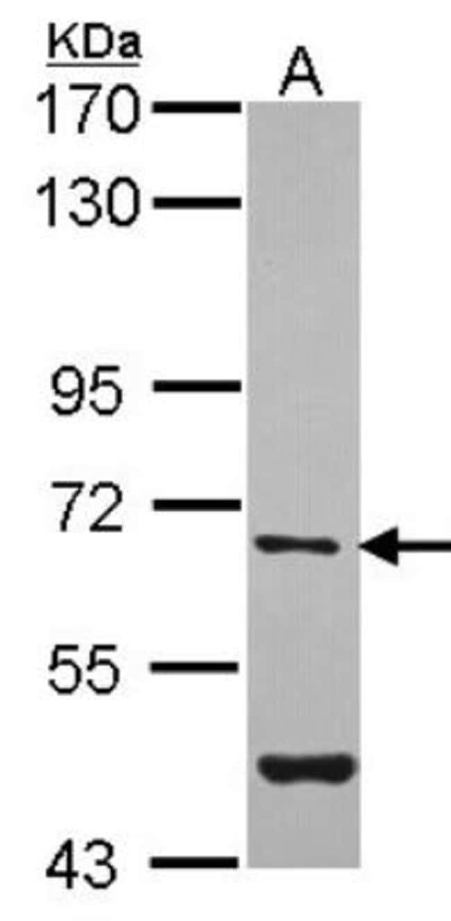 anti-Arylsulfatase G/ARSG, Polyclonal, Novus Biologicals 0.1mL; Unlabeled:Life