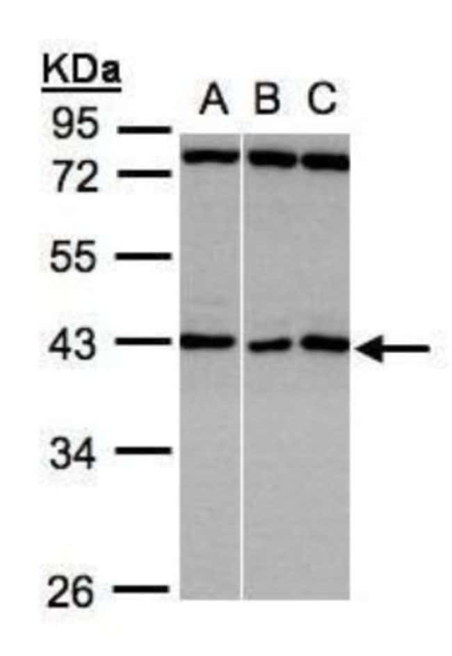 anti-ASB5, Polyclonal, Novus Biologicals 0.1mL; Unlabeled:Life Sciences