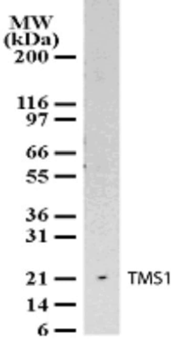 anti-ASC/TMS1, Polyclonal, Novus Biologicals:Antibodies:Primary Antibodies