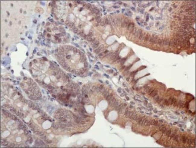 anti-ASC/TMS1, Polyclonal, Novus Biologicals 0.1mL; Unlabeled:Life Sciences