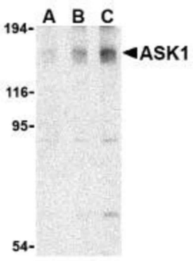 anti-ASK1, Polyclonal, Novus Biologicals 0.1mg; Unlabeled:Life Sciences