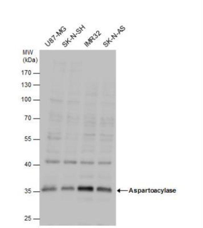 anti-ASPA, Polyclonal, Novus Biologicals 0.1mg; Unlabeled:Life Sciences