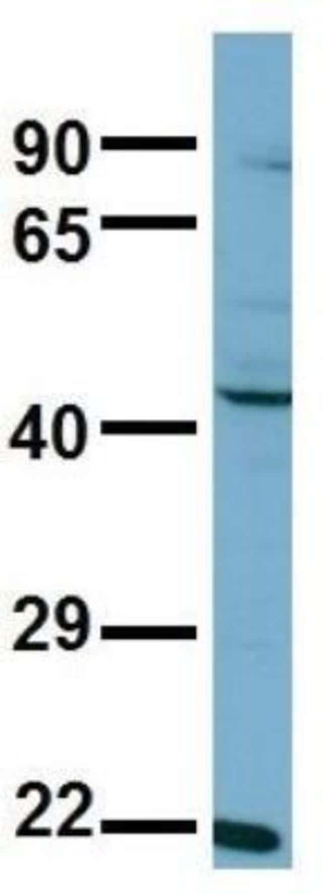 anti-Aspartate Aminotransferase, Polyclonal, Novus Biologicals:Antibodies:Primary