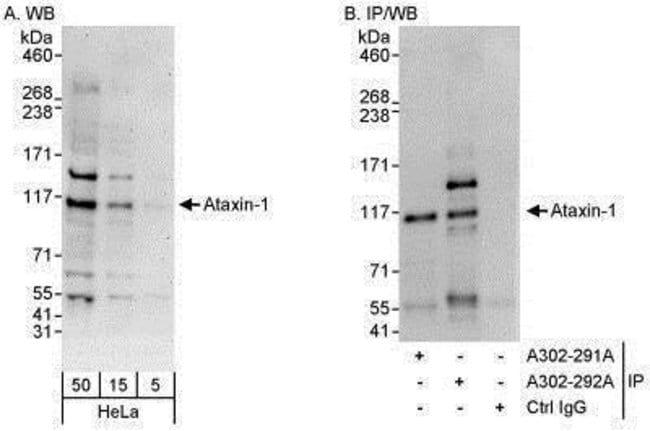 anti-Ataxin 1, Polyclonal, Novus Biologicals 0.1mL; Unlabeled:Life Sciences