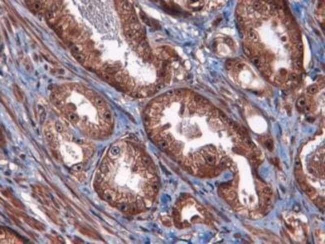 anti-ATF3, Polyclonal, Novus Biologicals:Antibodies:Primary Antibodies