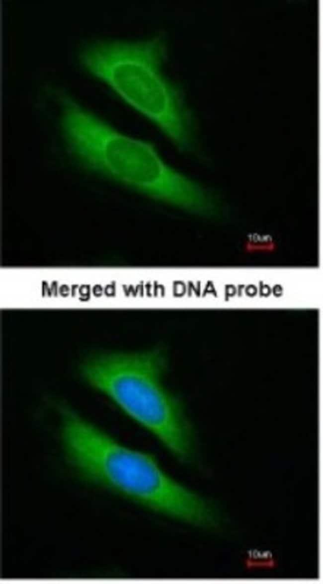 anti-ATIC, Polyclonal, Novus Biologicals 0.1mL; Unlabeled:Life Sciences