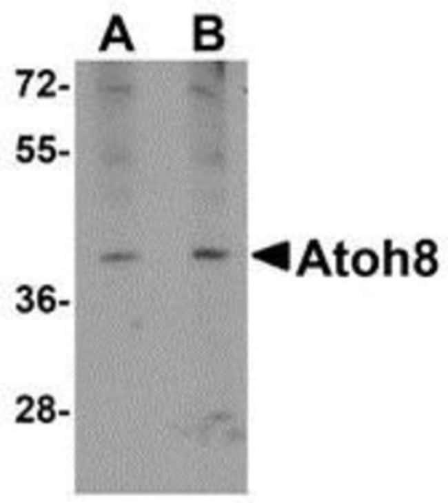 anti-ATOH8, Polyclonal, Novus Biologicals 0.1mg; Unlabeled:Life Sciences