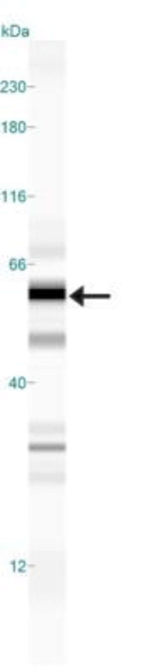 anti-ATP13A2, Polyclonal, Novus Biologicals:Antibodies:Primary Antibodies