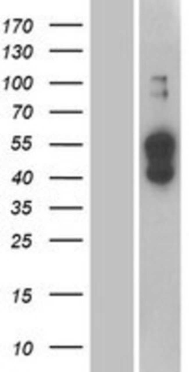 Novus Biologicals ATP1B4 Overexpression Lysate (Native) 0.1mg:Life Sciences