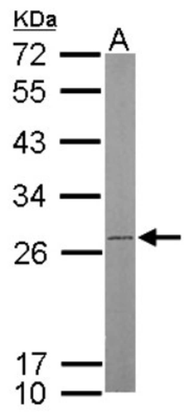 anti-ATP5F1, Polyclonal, Novus Biologicals 0.1mL; Unlabeled:Life Sciences