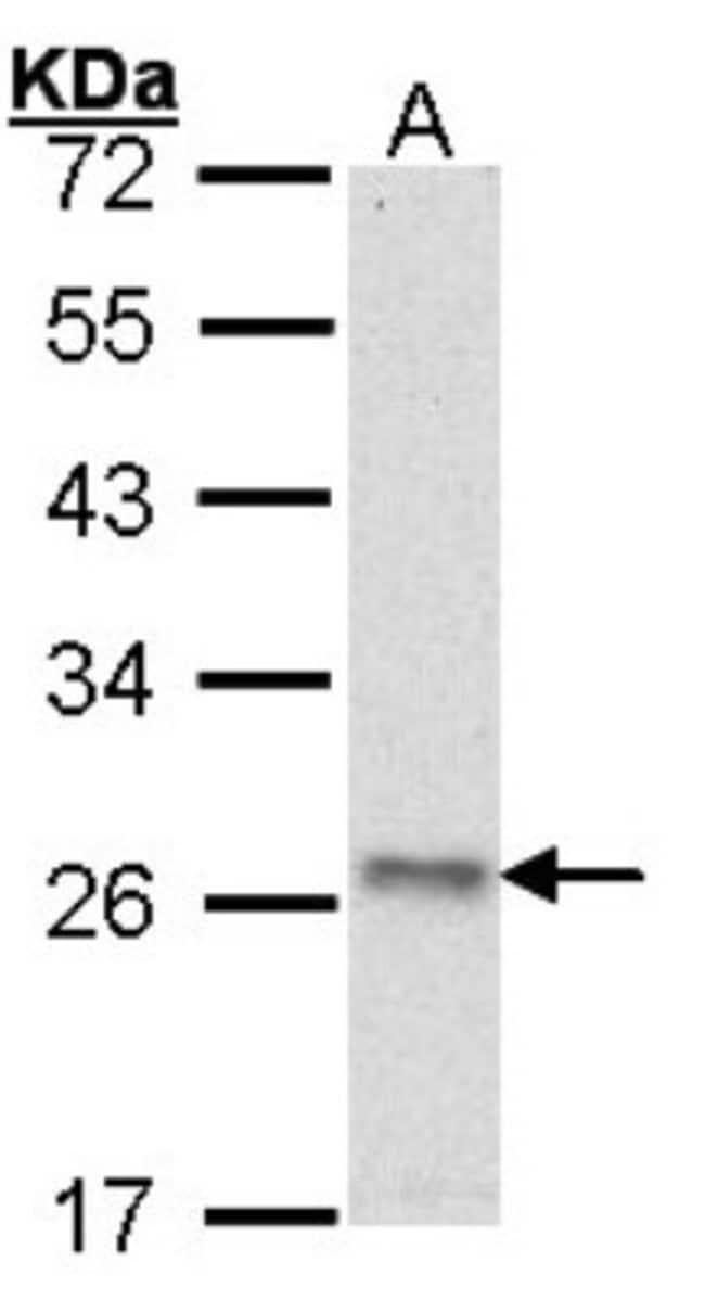 anti-ATP5O, Polyclonal, Novus Biologicals 0.1mL; Unlabeled:Life Sciences