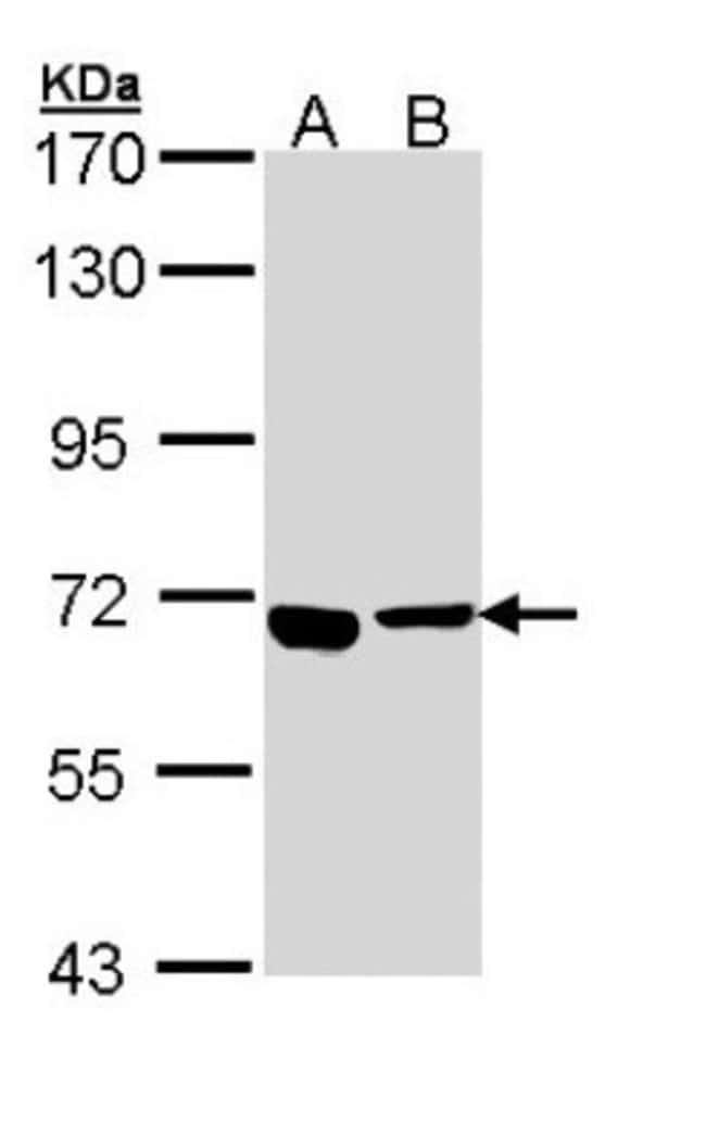 anti-ATP6V0A4, Polyclonal, Novus Biologicals 0.1mL; Unlabeled:Life Sciences