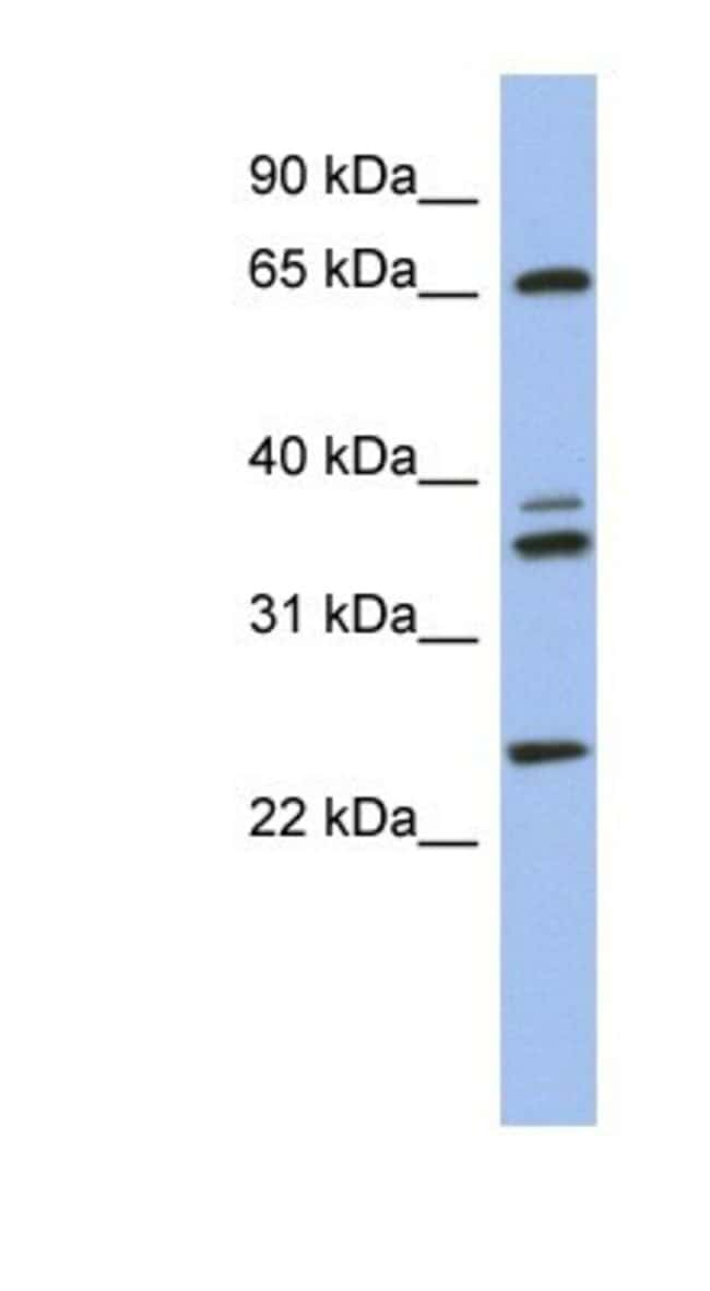 ATP6V1A Rabbit anti-Human, Polyclonal, Novus Biologicals 100µL; Unlabeled:Life