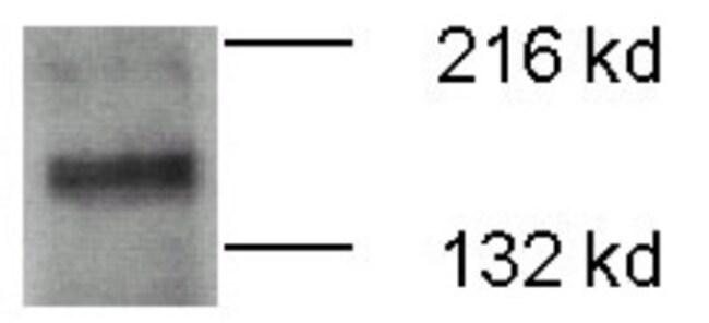 anti-ATP7b, Polyclonal, Novus Biologicals:Antibodies:Primary Antibodies