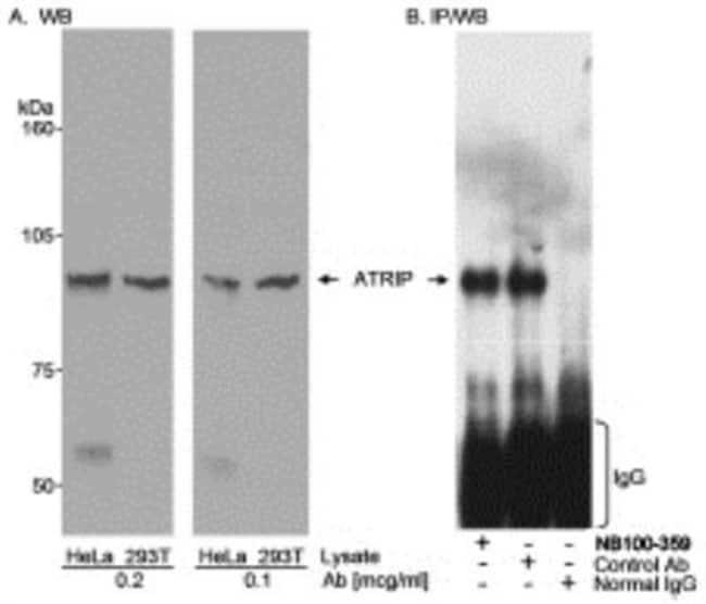 anti-ATRIP, Polyclonal, Novus Biologicals:Antibodies:Primary Antibodies