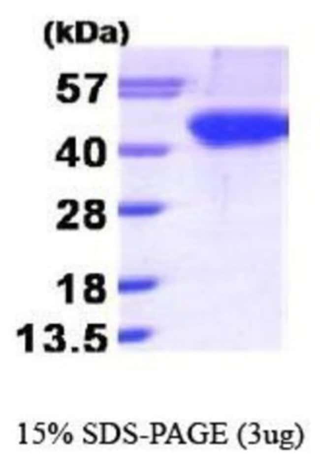 Novus Biologicals Aurora B Recombinant Protein 0.1mg:Life Sciences