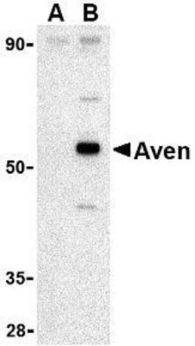 anti-AVEN, Polyclonal, Novus Biologicals 0.1mg; Unlabeled:Life Sciences