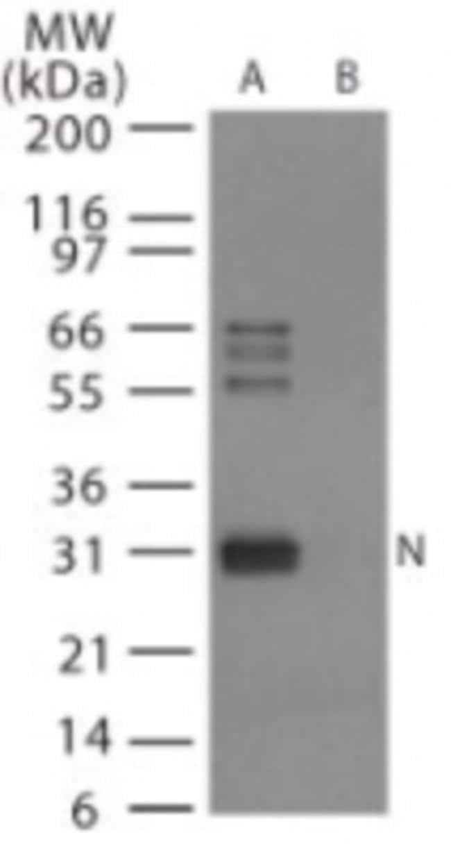 anti-Avian Flu Nucleoprotein, Polyclonal, Novus Biologicals:Antibodies:Primary