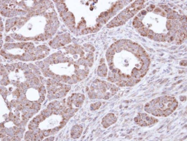 anti-B3GALTL, Polyclonal, Novus Biologicals 0.1mg; Unlabeled:Life Sciences