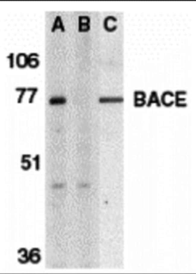 anti-BACE-1, Polyclonal, Novus Biologicals 0.1mg; Unlabeled:Life Sciences