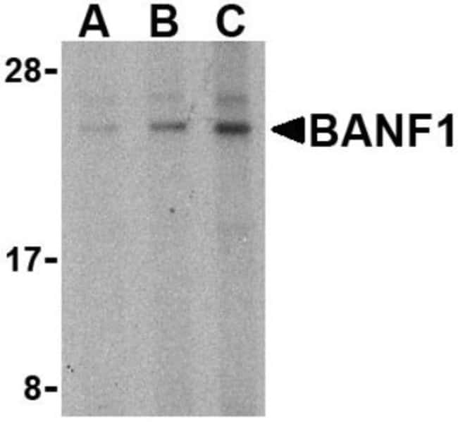 anti-BANF1, Polyclonal, Novus Biologicals 0.1mg; Unlabeled:Life Sciences
