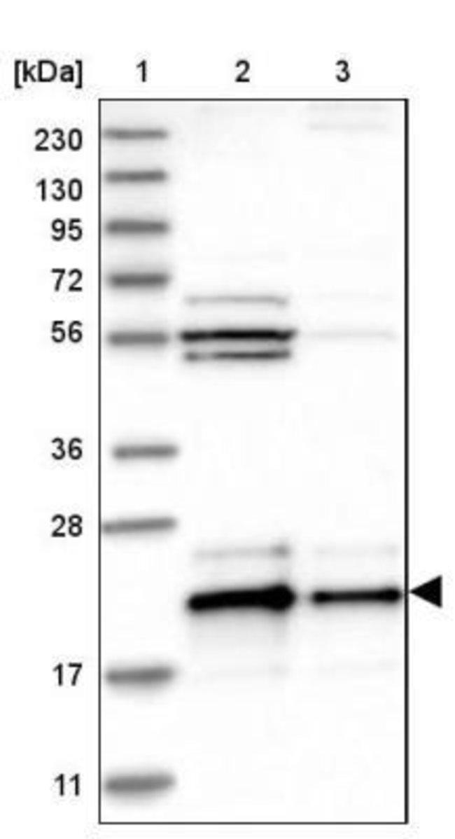 anti-BAP18, Polyclonal, Novus Biologicals 0.1mL; Unlabeled:Life Sciences