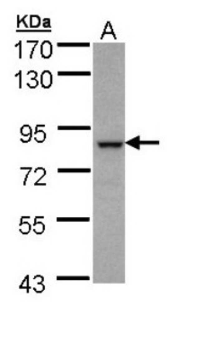 anti-BBS7, Polyclonal, Novus Biologicals 0.1mg; Unlabeled:Life Sciences