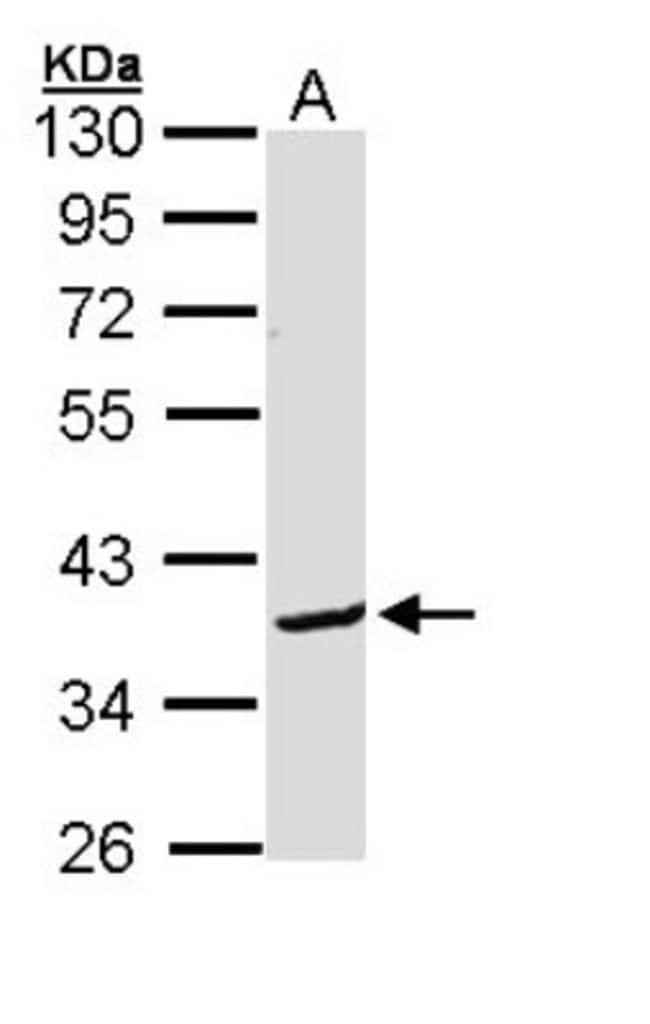 anti-BCL2L12, Polyclonal, Novus Biologicals 0.1mL; Unlabeled:Life Sciences