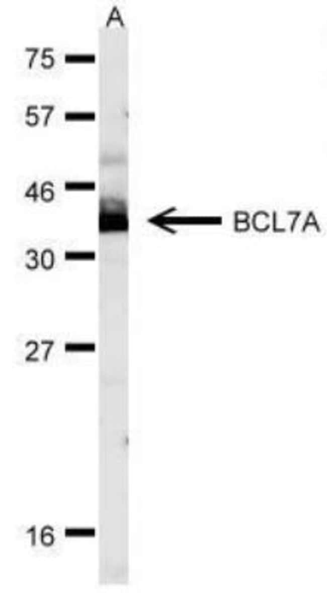 anti-Bcl 7A, Polyclonal, Novus Biologicals 0.1mg; Unlabeled:Life Sciences