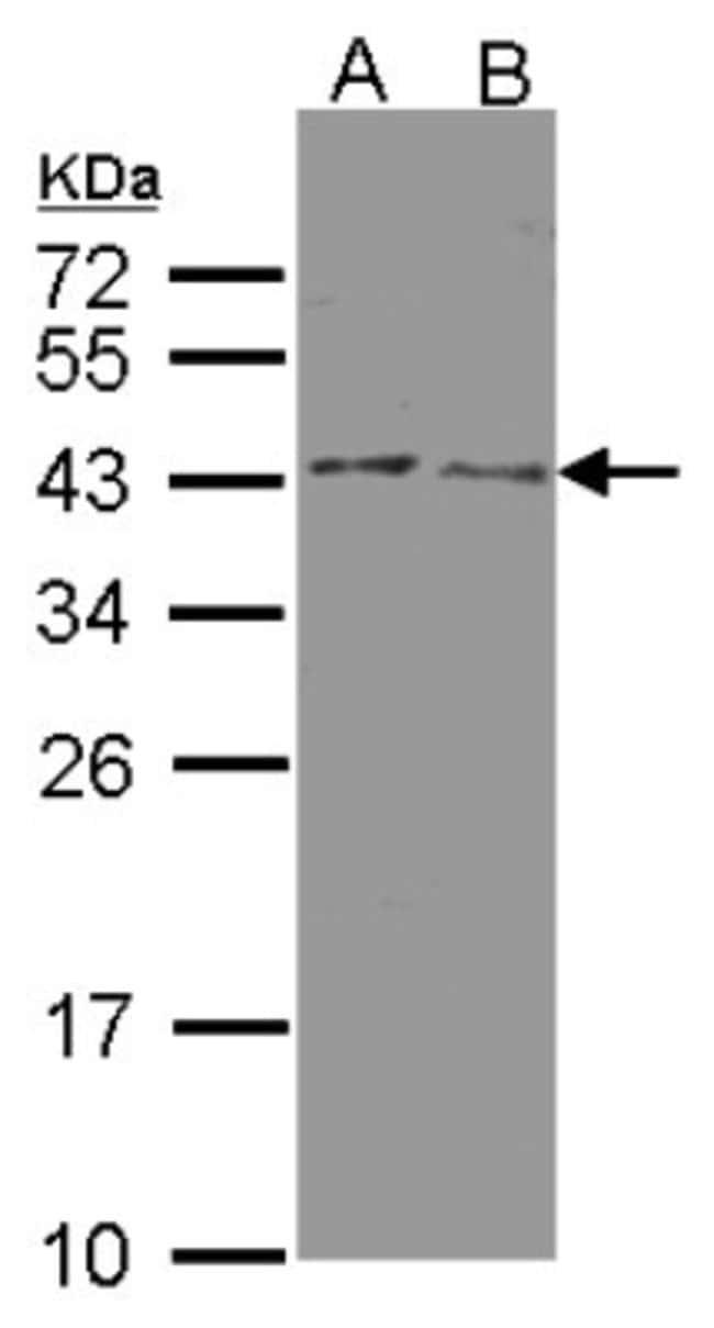 anti-Beta Hydroxysteroid Dehydrogenase, Polyclonal, Novus Biologicals 0.1mg;