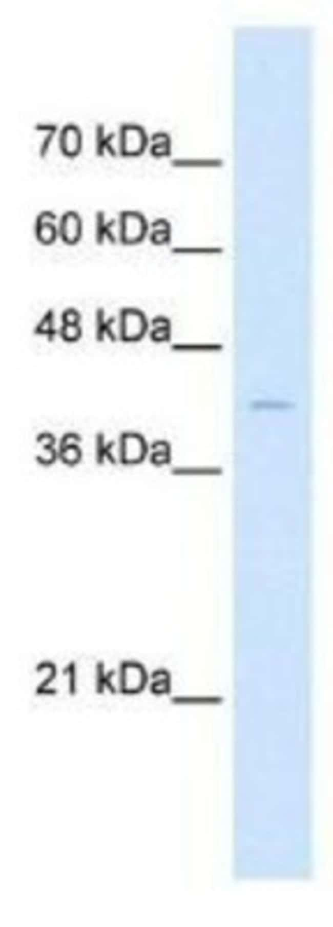anti-beta-Arrestin 2, Polyclonal, Novus Biologicals 0.05mg; Unlabeled:Life