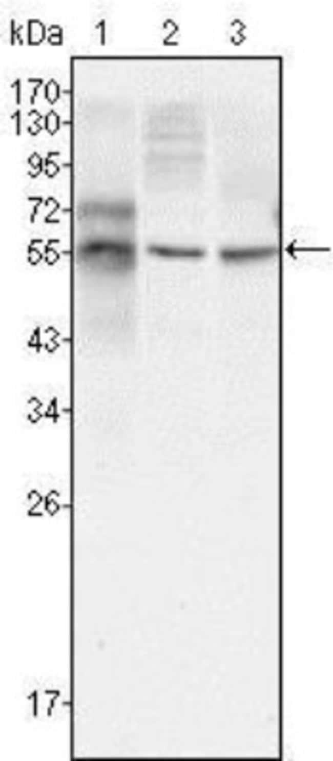 anti-beta-III Tubulin, Clone: 2E9, Novus Biologicals 0.025mL; Unlabeled:Antibodies